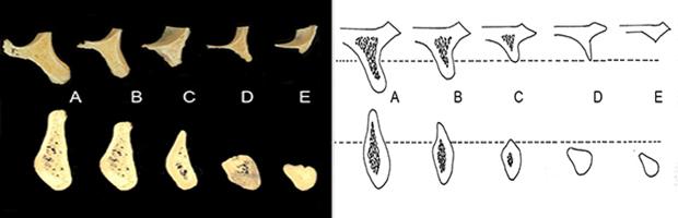 Αναγεννηση οστου- Κατηγοριες  οστικου ελλειματος