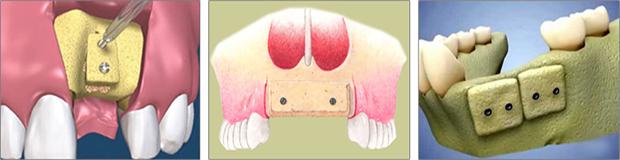 Αναγεννηση οστου - Αυτομοσχευματα - Τοποθετηση