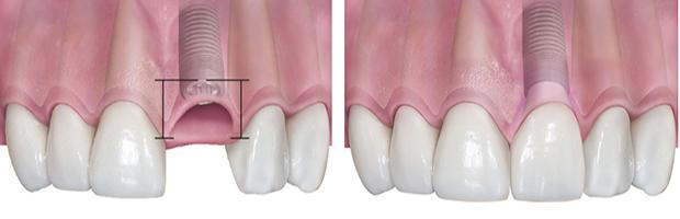 Αναγεννηση ουλων - Εμφυτευματα δοντιων