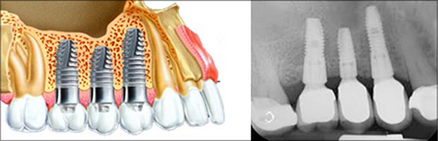 Γνάθος - Ιγμόρειο &  Εμφυτεύματα δοντιών