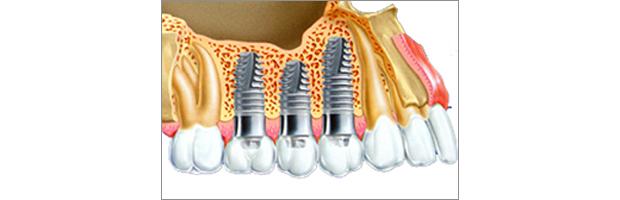 Εμφυτευματα δοντιων & Ιγμορειο