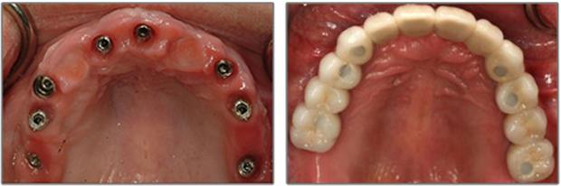 Εμφυτευματα δοντιων - Ολική κοχλιωτή γεφυρα
