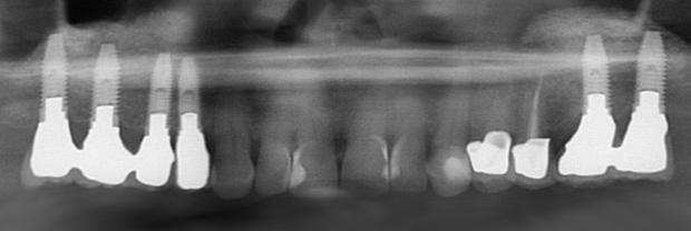 Εμφυτευματα δοντιων - Αποκατασταση πλαγιας περιοχης