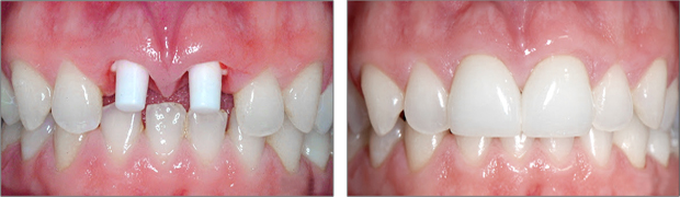 Εμφυτευματα Δοντιων - Αισθητικη Οδοντιατρικη