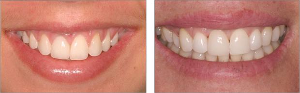 Εμφυτευματα δοντιων - Αναγεννηση Ούλων