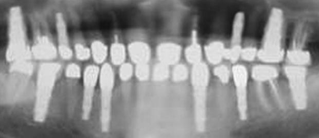 Εμφυτευματα δοντιων - Μονηρη εμφυτευματα
