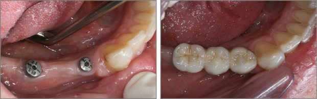 Εμφυτευματα δοντιων - Σταθερη γεφυρα