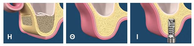 Sinus lift - Οστικο μοσχευμα και εμφυτευση