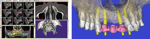 Dental Scan - Εμφυτευματα δοντιων στην άνω γναθο