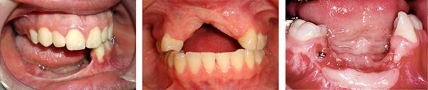 Αναγεννηση οστου - Συνδυασμενες βλαβες