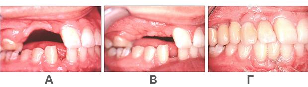 Αναγεννηση οστου - Συνδυασμενες βλαβες - Εξωστοματικο μοσχευμα