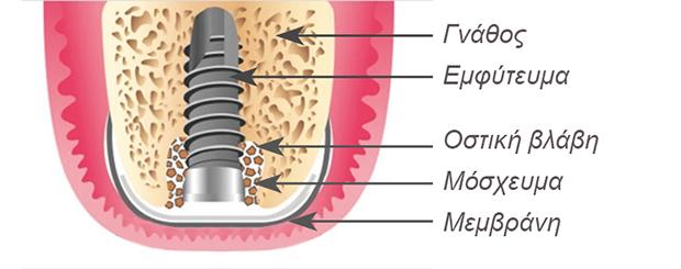 Αναγεννηση οστου - Εμφυτευματα δοντιων