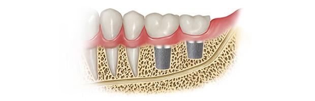 Φατνειακο νεύρο - εμφυτεύματα δοντιών
