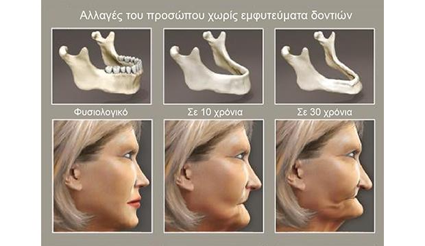 Γναθος & Πρόσωπο - Αλλαγές χωρις εμφυτευματα δοντιων
