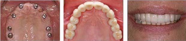 Εμφυτευματα Δοντιων - Ολική συγκολλούμενη γεφυρα
