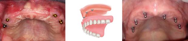 Εμφυτευματα δοντιων - Σφαιρικα κολοβωματα