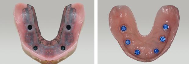 Σφαιρικα κολοβωματα - Συγκρατητικα στοιχεια