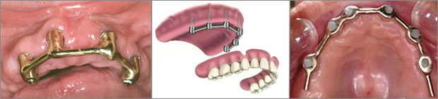 Εμφυτευματα δοντιων - Δοκός συγκράτησης