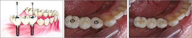Εμφυτευματα δοντιων - Κοχλιωτη γεφυρα