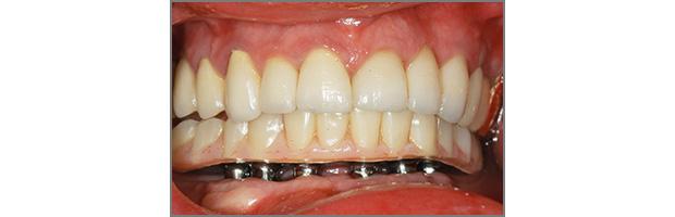 Εμφυτευματα δοντιων - Υβριδική αποκατάσταση
