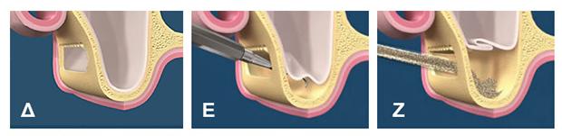 Sinus lift - Ανυψωση μεμβρανης