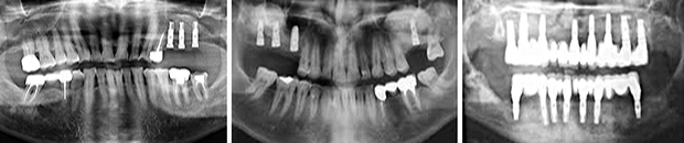 Sinus lift - Εμφυτευματα δοντιων