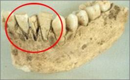Τα πρώτα εμφυτευματα δοντιων.
